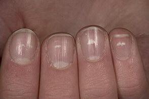 Keratin Granulations or Nail Fungus?